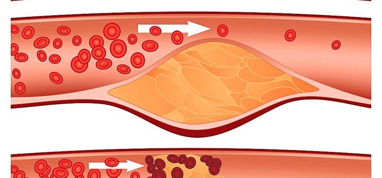 What You Can Do About Your Cholesterol